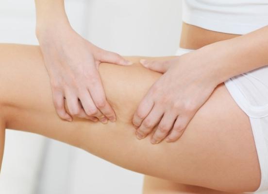 Anti Cellulite : traitements et conseils pour combattre la cellulite